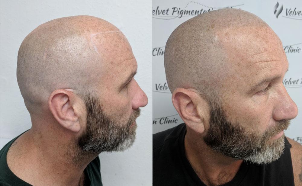Scalp Pigmentation Before And After