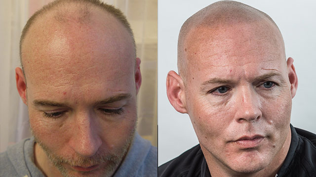 Scalp Micropigmentation Before and After