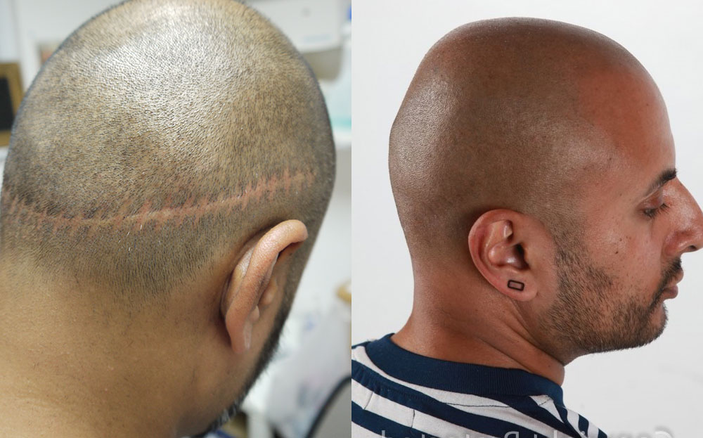 Tricopigmentation Before and After